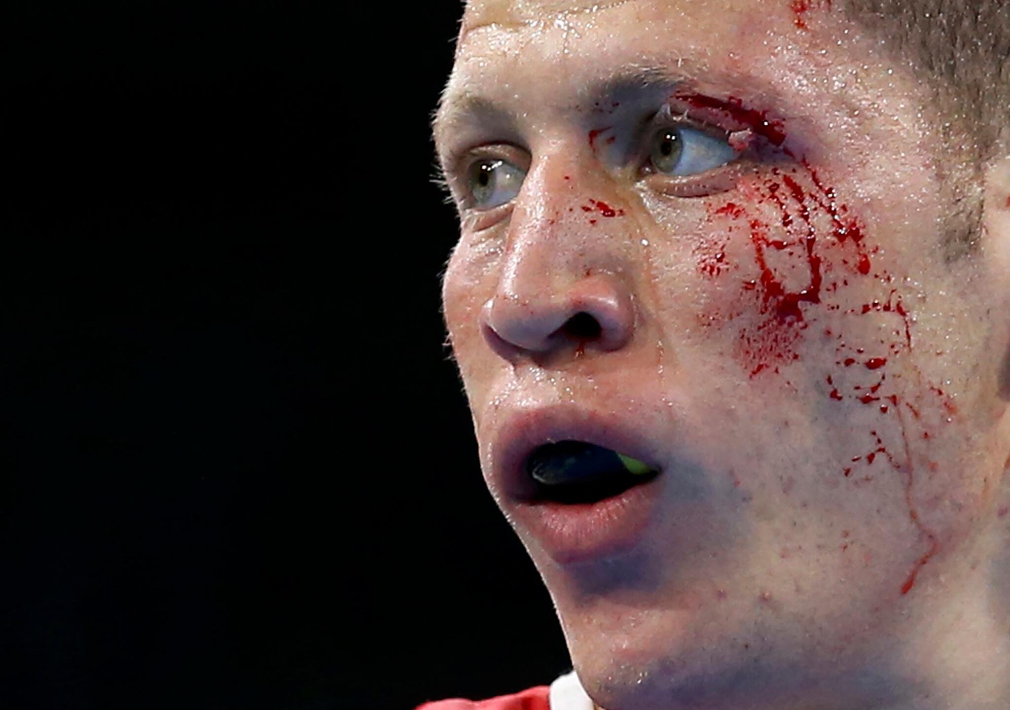 Heridas olímpicas